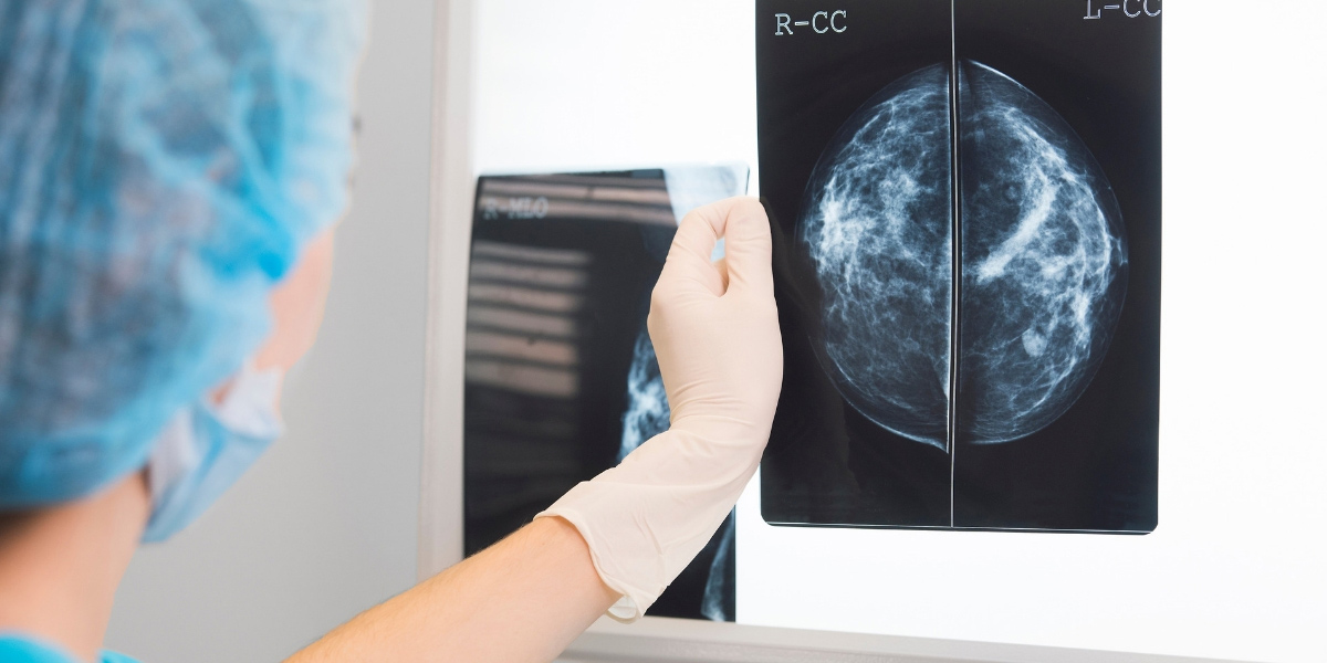 The Difference Between Dense and Nondense Breast Tissue